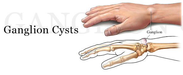 ganglion cysts | boston bodyworker, Skeleton