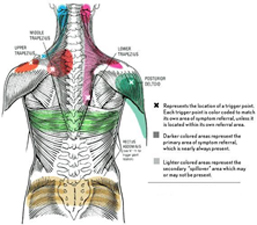 referral pain diagram