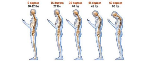 texting and neck pain